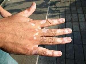 临夏看白癜风专科医院分析手指关节长白斑是白癜风吗?